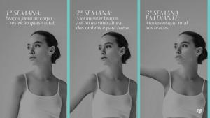 Infografico movimentação dos braços - colocar silicone - mamoplastia de aumento