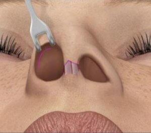 Cicatriz - ilustracao rinoplastia
